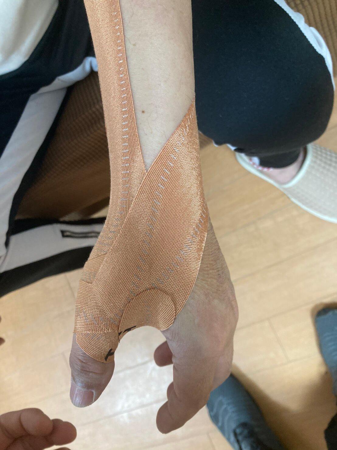 母指の靭帯損傷のテーピング